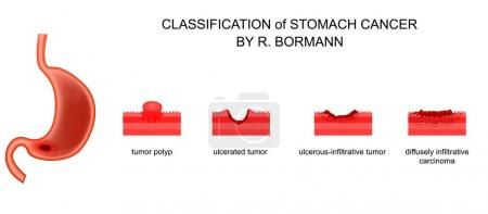 classification of gastric cancer