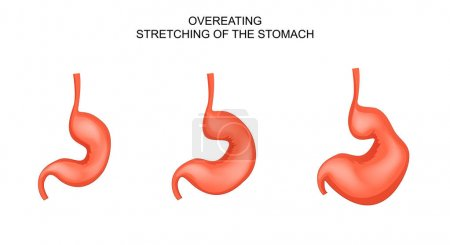 the stomach,distended from overeating