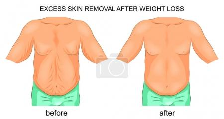 removal of excess skin after weight loss