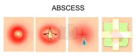 Vector illustration of abscess, furuncle, autopsy,...