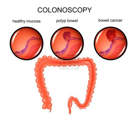 polyp of the large intestine and cancer