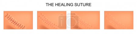 the process of healing of postoperative suture