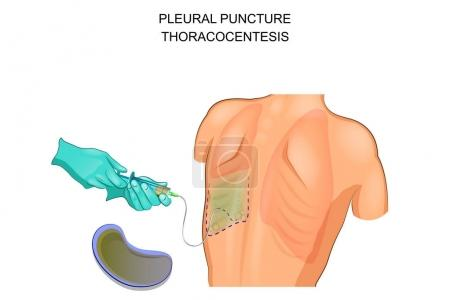 thoracocentesis,  pleural puncture