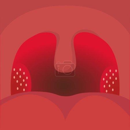 Tonsilitis, sore throat
