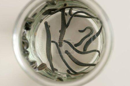 Hirudotherapy. Medical leeches
