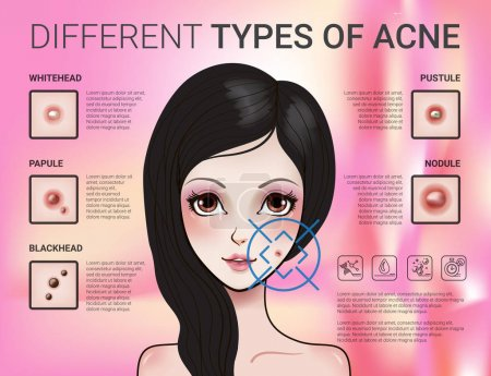Infographics of different type of skin acne