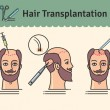 Vector Illustrated set with hair transplant surger...