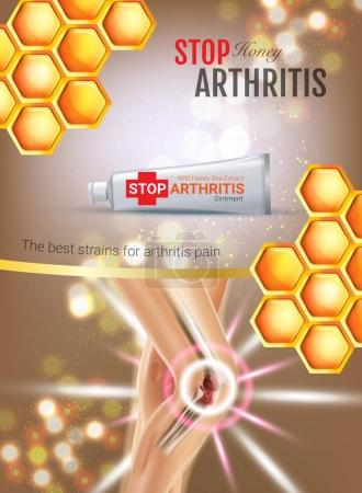 Arthritis Pain Relief Ointment ads. Vector 3d Illustration with Tube cream with honey extract.