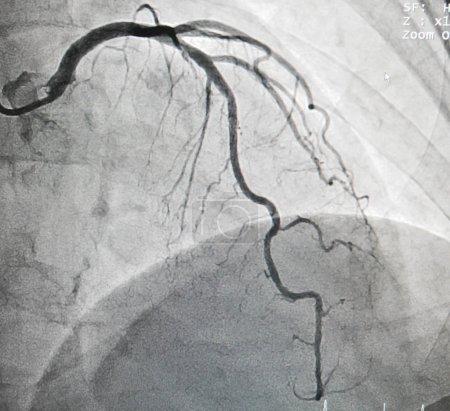 Photo pour Maladie de l'artère interventriculaire antérieure, il provoque des douleurs thoraciques - image libre de droit