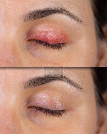 Eine Vorher-Nachher-Betrachtung einer Frau mit bakterieller Augeninfektion. Schmerzhaft geschwollene und schmerzende Augenlider sind im oberen Bild zu sehen. Und nur sehr geringe Rötungen im Gesäß nach der Behandlung.