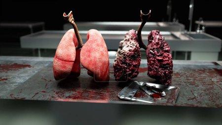 Photo pour Poumons sains et poumons malades sur la table de la morgue. Concept médical d'autopsie. Cancer et tabagisme - image libre de droit
