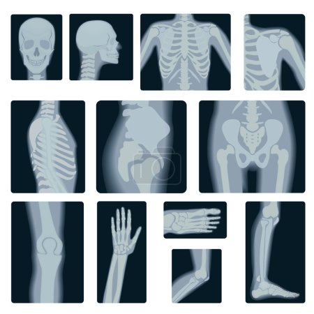 Extreme quality realistic vector collage set of many X-rays shots. X-ray multiple part of adult people.