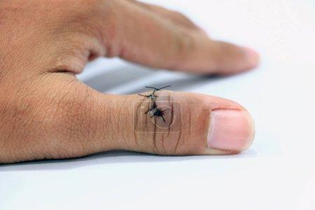 Photo pour Gros plan des blessés et cousu sur le doigt de pouce. - image libre de droit