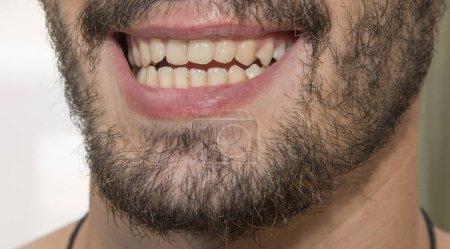 Photo pour Le sourire d'homme barbu, montrant de mauvaises dents. Bureau du dentiste. - image libre de droit