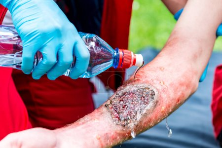 Medical worker treating burns on male's hand. First aid treatment outdoors. First aid practice