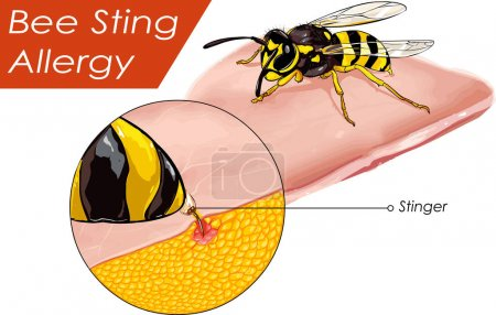 Vector illustration of a Bee sting allergy