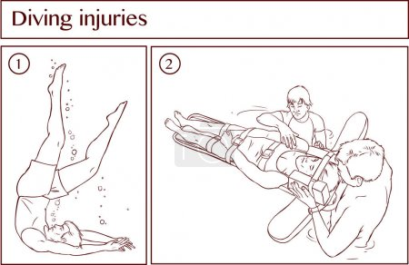 Vector illustration of a Diving injuries