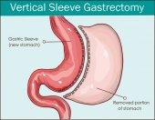 Vector illustration of Vertical Sleeve Gastrectomy