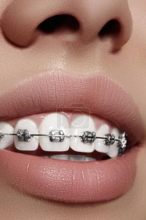 Photo pour Coup de belle macro de dents blanches avec des accolades. Photo de soins dentaires. Beauté femme sourire avec des accessoires d'ortodontic. Traitement d'orthodontie. Gros plan de bouche femme saine - image libre de droit