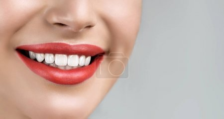 young woman  with whitening teeth