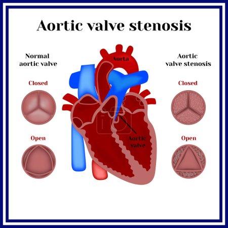 Aortic valve stenosis. Heart pathology.