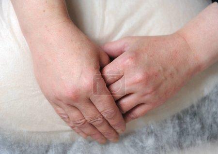 Piel enrojecida en las manos después de la terapia con dióxido de carbono (carboxiterapia) )