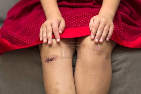 Close-up of little girl holding her bruised injured damaged knee
