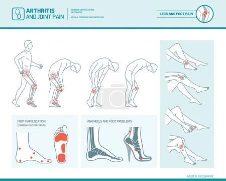 Foot pain, leg pain and arthritis infographic