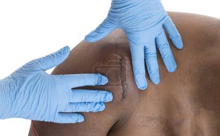 Photo pour Infirmière palping un onshoulder hématome sous les cicatrices sur femme noire - image libre de droit