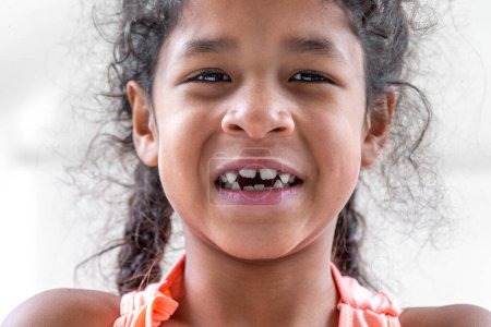 Photo for Close up girl mouth with crooked broken teeth and odontolith - Royalty Free Image