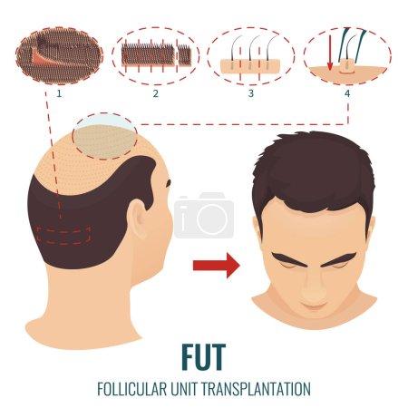 Male hair loss treatment with follicular unit tran...