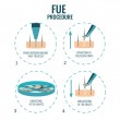 Follicular unit extraction procedure stages.  FUE ...