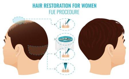 FUT treatment for women