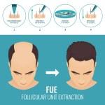 Male hair loss treatment with follicular unit extr...
