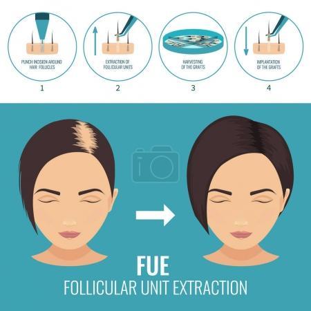Female hair loss treatment with follicular unit ex...