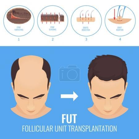 FUT hair loss treatment