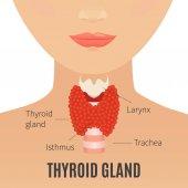 """Постер, картина, фотообои """"Щитовидная железа на силуэт женщины"""""""