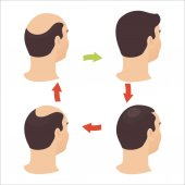 Male hair loss stages set