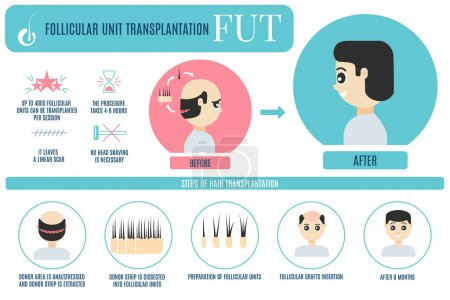 FUT hair transplantation for men