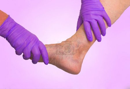 Lower limb vascular examination because suspect of venous insufficiency.