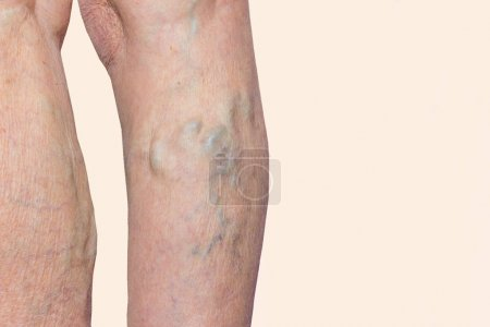 The old age and sick of a woman. Varicose veins on...