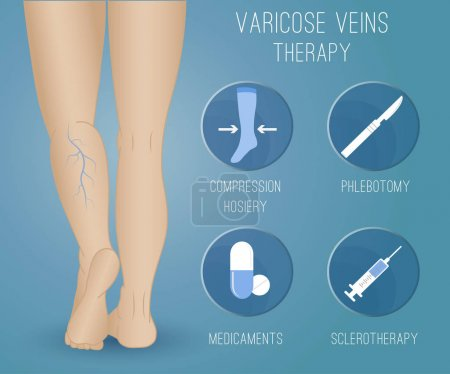 Infographics phlebology, treating varicose veins on women's legs