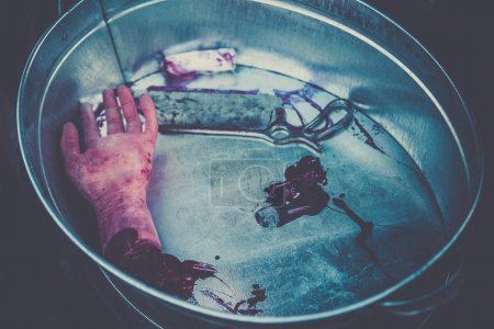 Hand amputated by a medical saw, as an illustration of the work of doctors during the war or illegal activities of surgeons or crime scene. Toned image