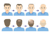 balding head young men