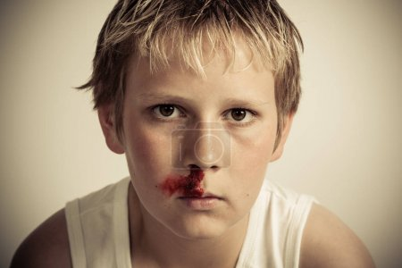 Teenage boy with a nosebleed