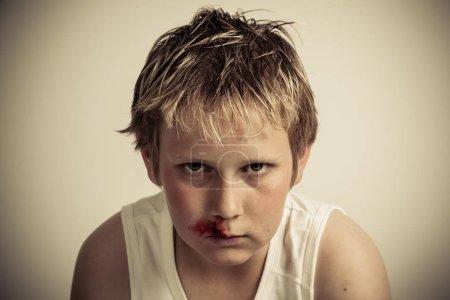 Teenage boy with a nosebleed