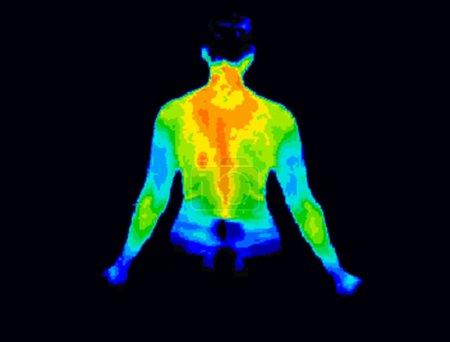 Photo pour Image thermographique de l'arrière du haut du corps montrant différentes températures dans une gamme de couleurs allant du bleu montrant froid au rouge montrant chaud qui peut indiquer une inflammation articulaire . - image libre de droit