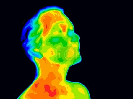 Thermographic image of a human face and neck showi...