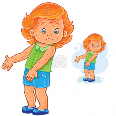 Illustration for Vector illustration of little girl with a rash on skin, smallpox, chickenpox, mange, allergy. Print - Royalty Free Image