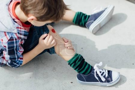 Injured young boy looking at a bleeding knee